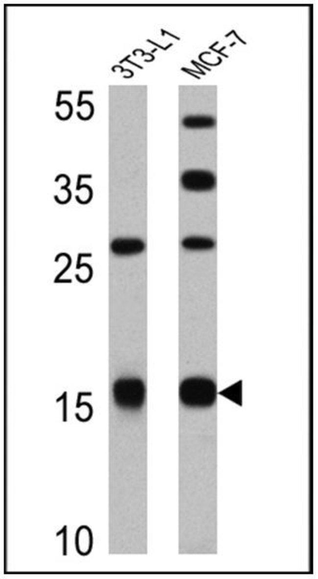 Leptin Rabbit anti-Human, Mouse, Porcine, Polyclonal, Invitrogen 100 µL;