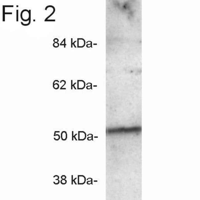 PICK1 Rabbit anti-Mouse, Rat, Polyclonal, Invitrogen 100 µg; Unconjugated