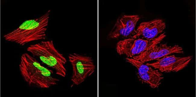GATA1 Rabbit anti-Human, Mouse, Polyclonal, Invitrogen 20 µL; Unconjugated