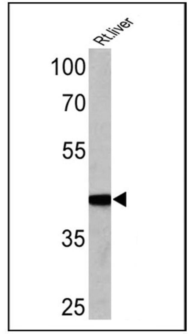 Adiponectin Receptor 2, Polyclonal, Invitrogen 100µg; Unconjugated