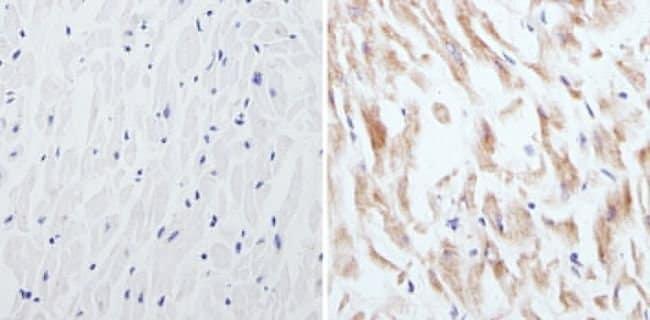CPEB1 Rabbit anti-Human, Mouse, Rat, Polyclonal, Invitrogen 100 µg;