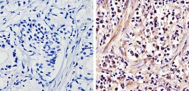 Androgen Receptor Rabbit anti-Human, Mouse, Non-human primate, Rat, Polyclonal,