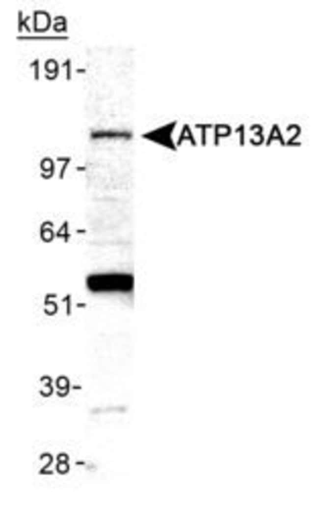 ATP13A2 Rabbit anti-Human, Mouse, Polyclonal, Invitrogen 100 µL; Unconjugated