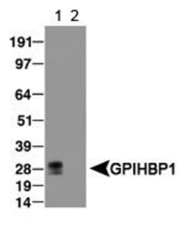 GPIHBP1 Rabbit anti-Bovine, Mouse, Rat, Polyclonal, Invitrogen 100 μL;