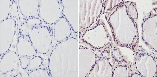 THRB Rabbit anti-Human, Rat, Polyclonal, Invitrogen 100 µL; Unconjugated