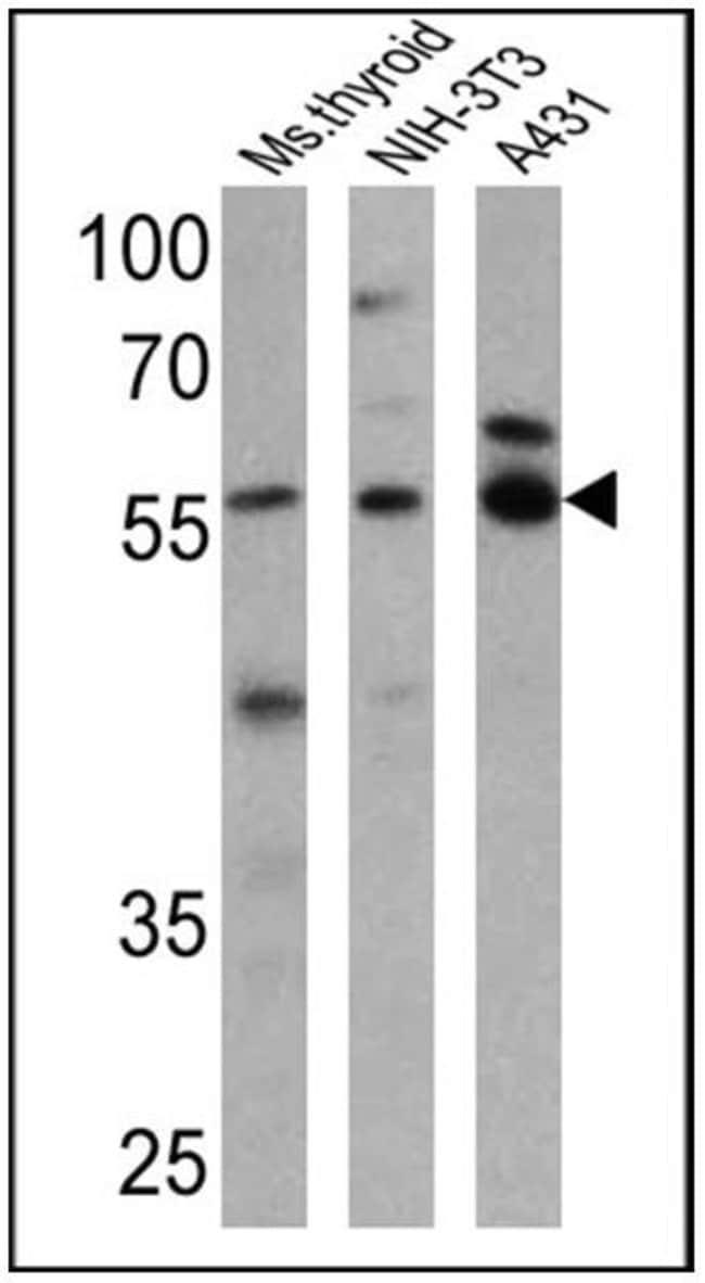 THRA Rabbit anti-Human, Mouse, Polyclonal, Invitrogen 200 µg; Unconjugated