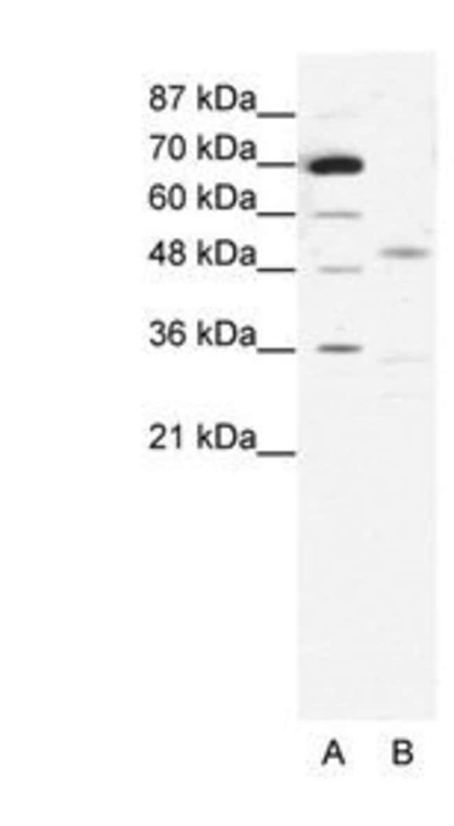 CHRNE Rabbit anti-Human, Polyclonal, Invitrogen 100 µg; Unconjugated