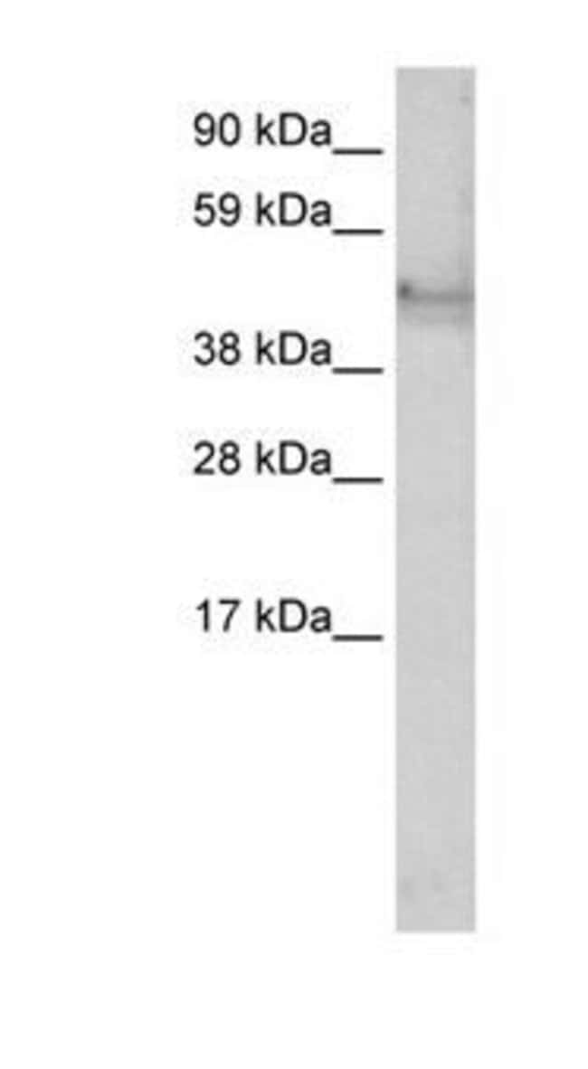 Cytokeratin 14 Rabbit anti-Human, Polyclonal, Invitrogen 100 µg; Unconjugated