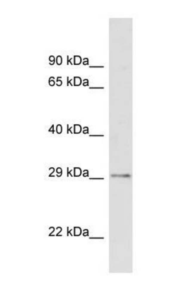 CDX2 Rabbit anti-Human, Polyclonal, Invitrogen 50 µg; Unconjugated