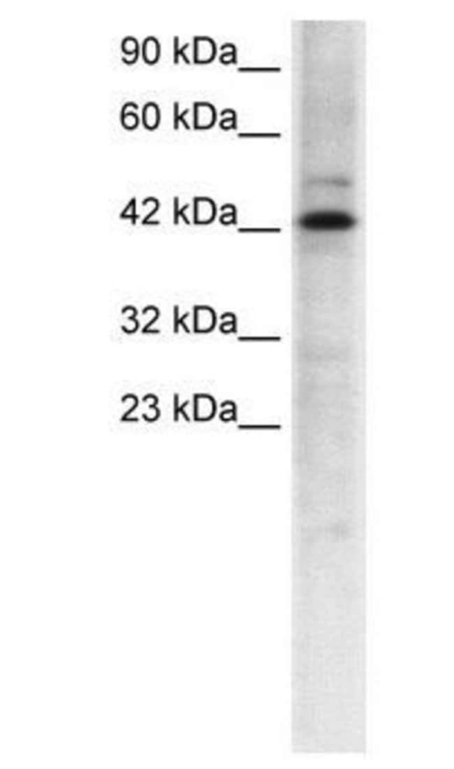 TCFL5 Rabbit anti-Human, Polyclonal, Invitrogen 50 µg; Unconjugated