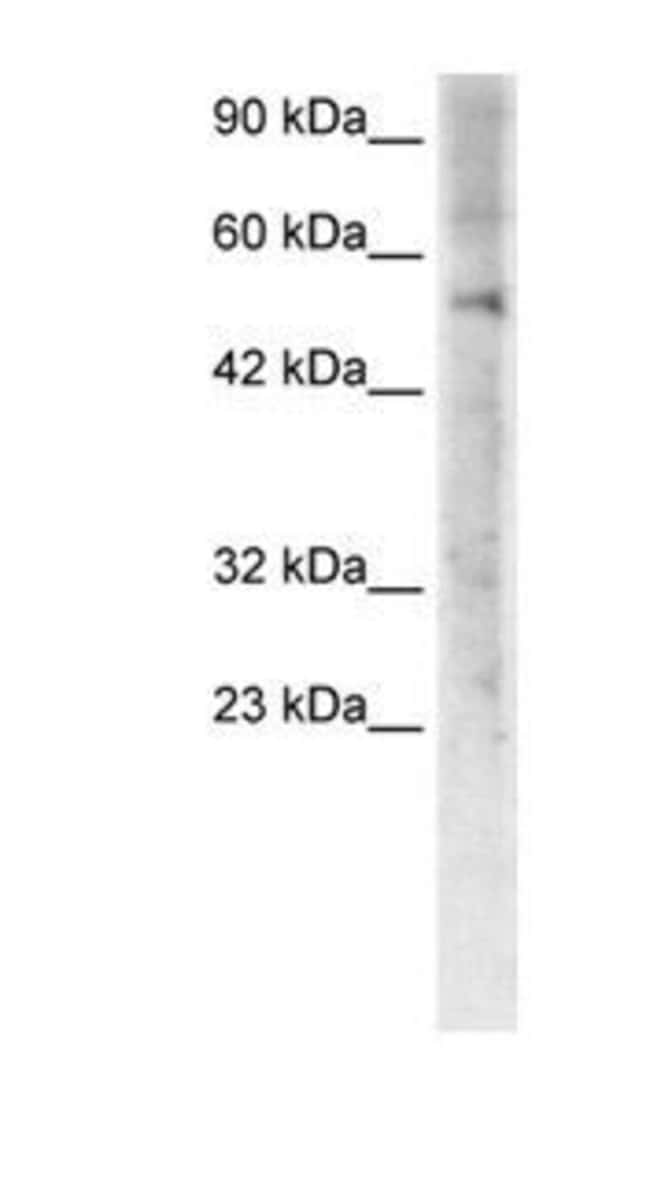 ZNF500 Rabbit anti-Human, Polyclonal, Invitrogen 50 µg; Unconjugated