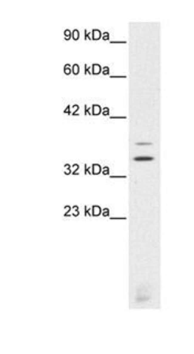 CHX10 Rabbit anti-Human, Polyclonal, Invitrogen 50 µg; Unconjugated