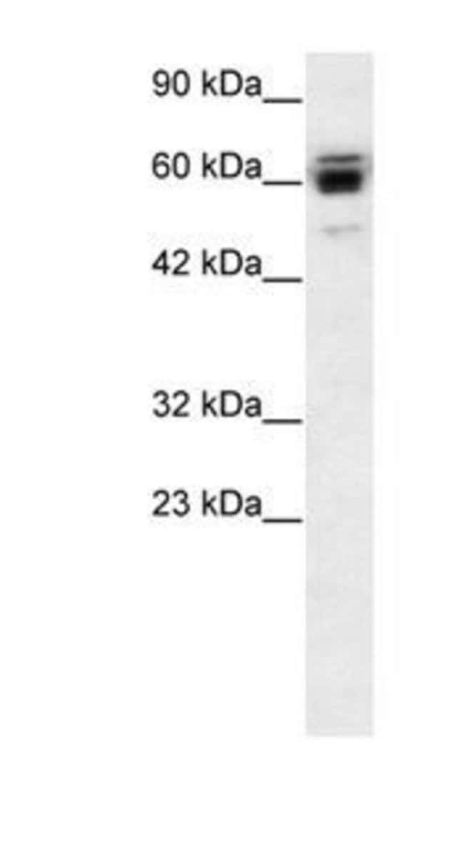RNF12 Rabbit anti-Human, Polyclonal, Invitrogen 50 µg; Unconjugated