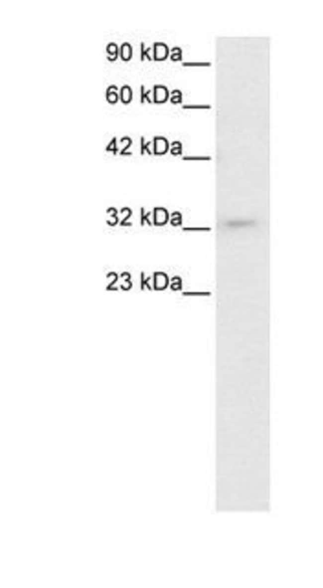 PIT1 Rabbit anti-Canine, Human, Mouse, Rat, Polyclonal, Invitrogen 50 µg;