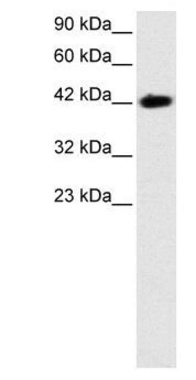 BARHL2 Rabbit anti-Human, Polyclonal, Invitrogen 50 µg; Unconjugated