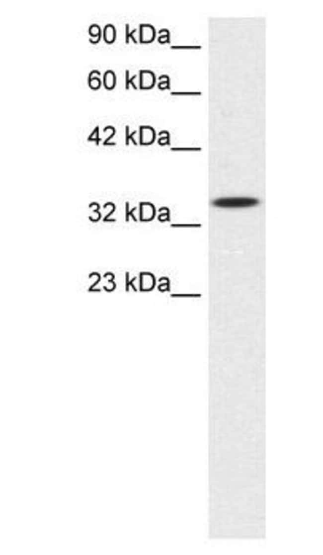 SMAD6 Rabbit anti-Human, Polyclonal, Invitrogen 100 µg; Unconjugated