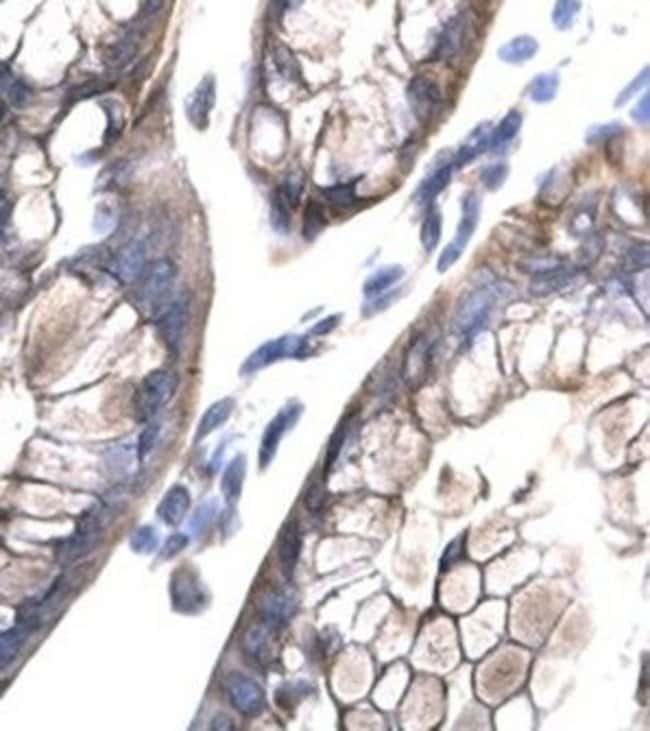 MOX1 Rabbit anti-Human, Polyclonal, Invitrogen 50 µg; Unconjugated