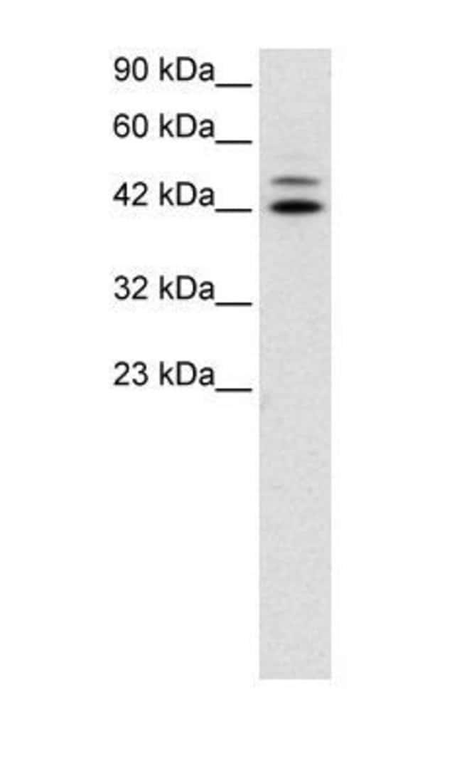 IRF8 Rabbit anti-Human, Polyclonal, Invitrogen 50 µg; Unconjugated