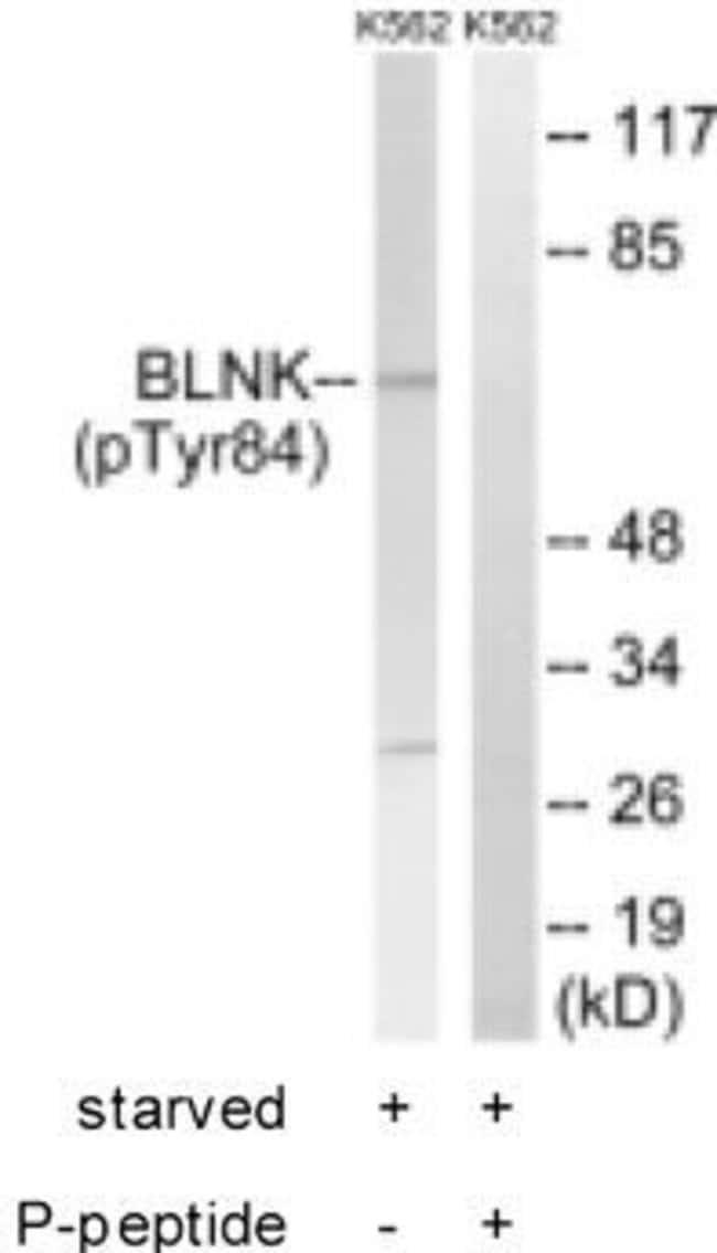 Phospho-BLNK (Tyr84) Rabbit anti-Human, Mouse, Polyclonal, Invitrogen 50