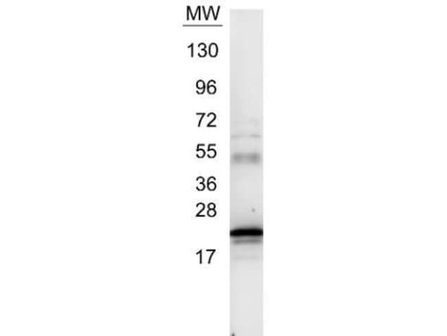 IL-6 Rabbit anti-Human, Polyclonal, Invitrogen 200 µL; Unconjugated