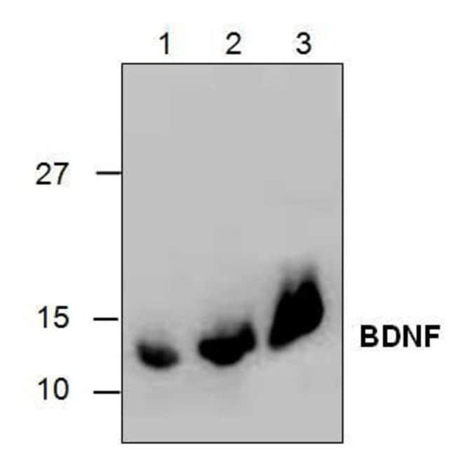 BDNF Goat anti-Human, Polyclonal, Invitrogen 50 µg; Unconjugated