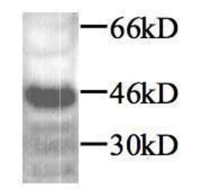 TGF beta-1 Rabbit anti-Human, Mouse, Rat, Polyclonal, Invitrogen 100 µg;