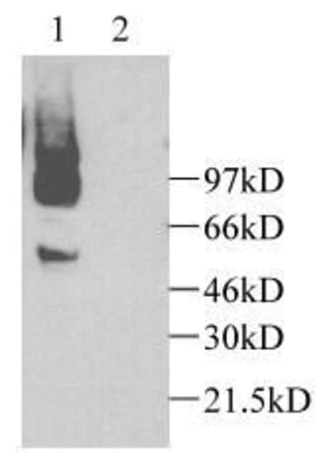 CX3CL1 Rabbit anti-Human, Mouse, Rat, Polyclonal, Invitrogen 100 µg;