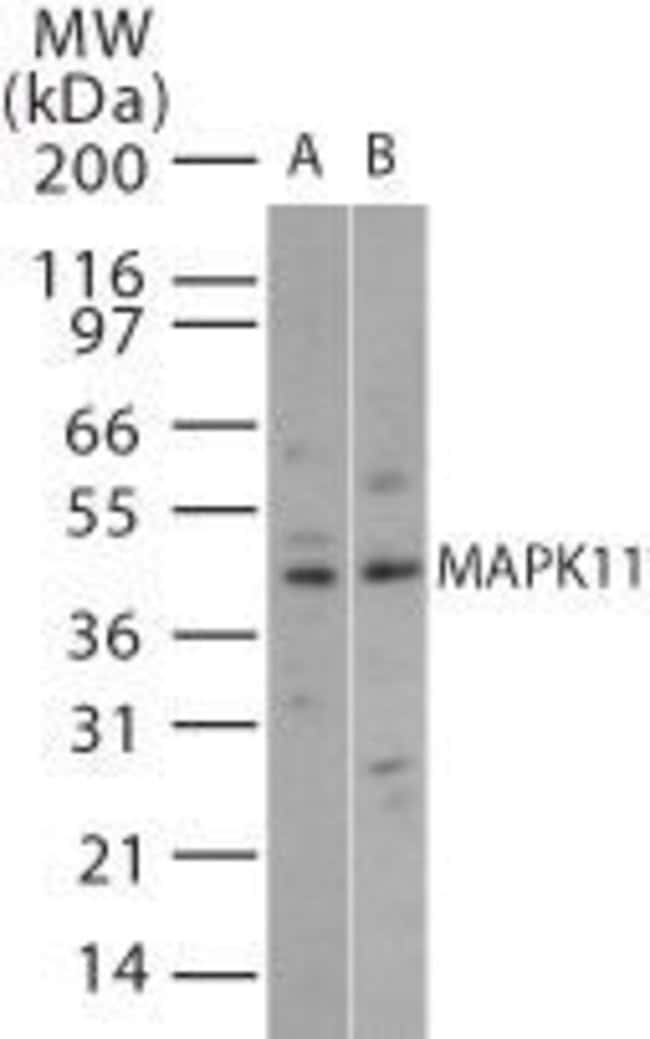 p38 MAPK beta Rabbit anti-Human, Mouse, Polyclonal, Invitrogen 100 µg;