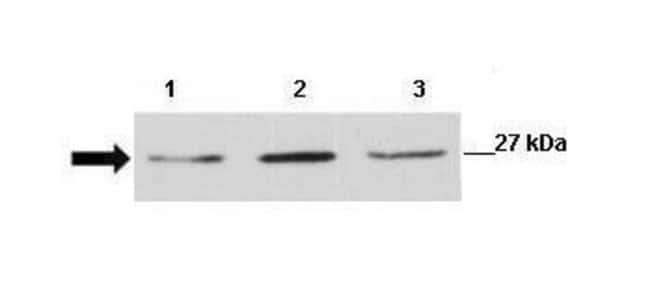 CLIC1 Rabbit anti-Human, Polyclonal, Invitrogen 100 µg; Unconjugated