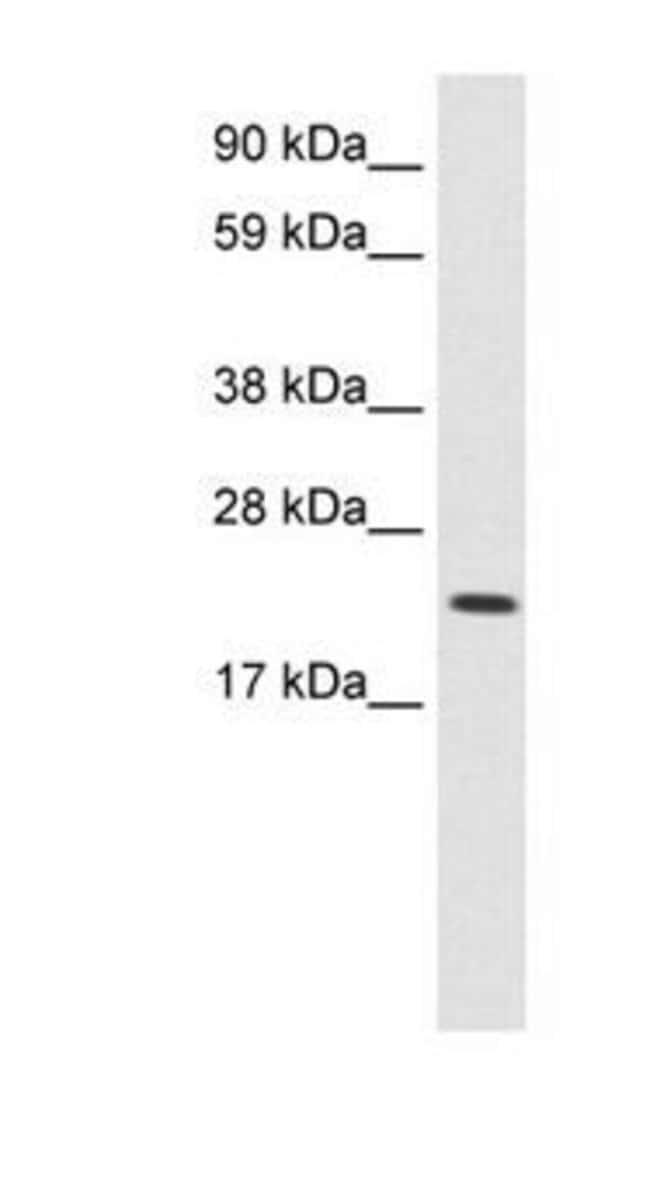 L-Myc Rabbit anti-Human, Polyclonal, Invitrogen 100 µg; Unconjugated