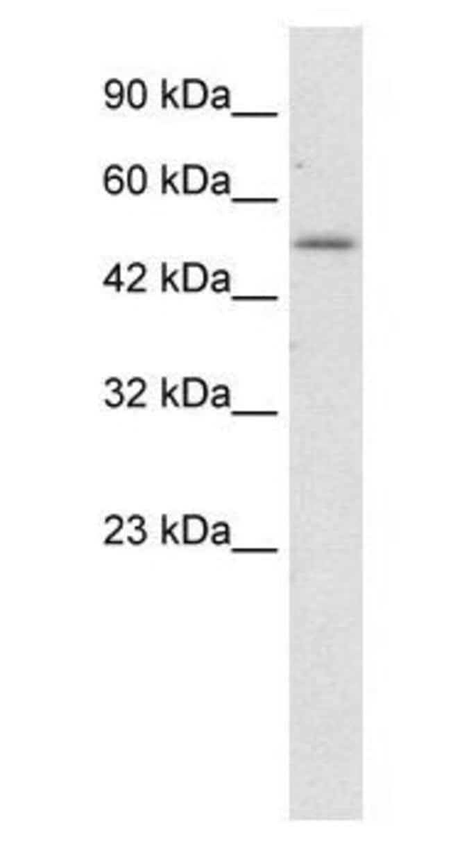 ZNF683 Rabbit anti-Human, Polyclonal, Invitrogen 100 µg; Unconjugated