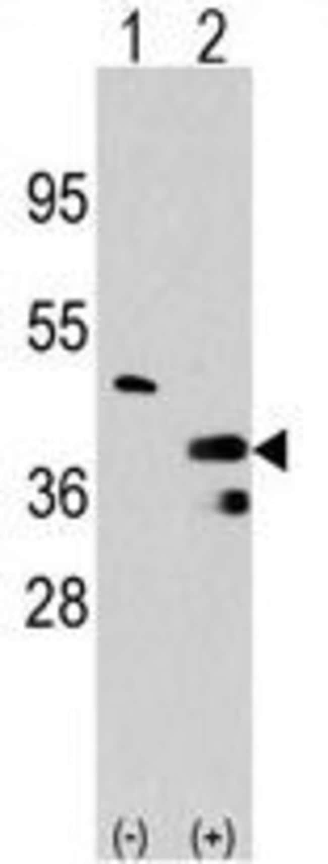 PRMT1 Rabbit anti-Human, Polyclonal, Invitrogen 400 µL; Unconjugated