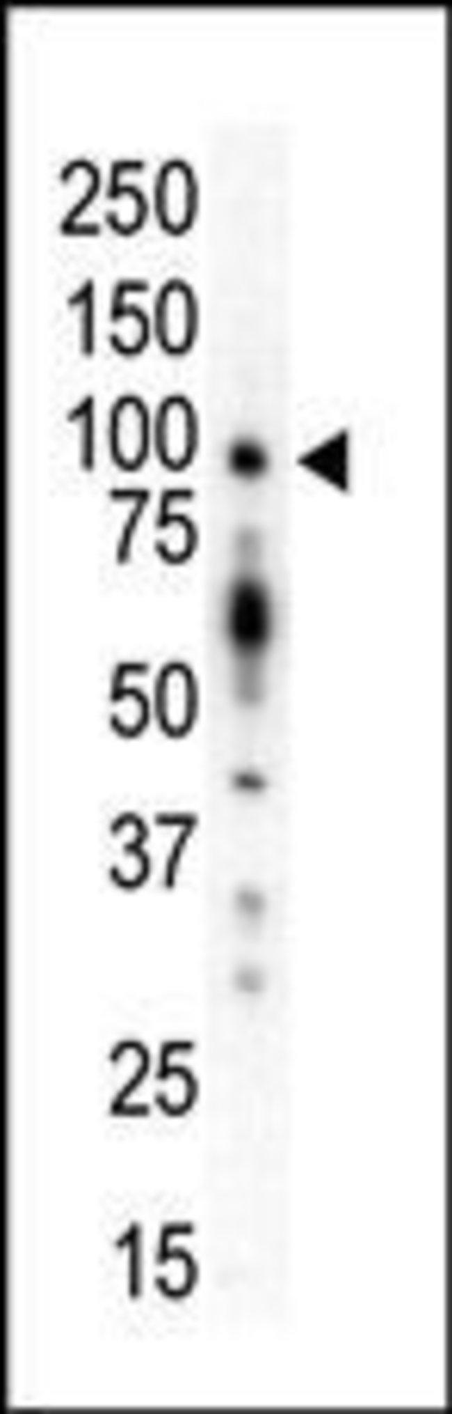 PKC mu Rabbit anti-Human, Mouse, Polyclonal, Invitrogen™ 400 μL; Unconjugated Primary Antibodies Pi to Pm