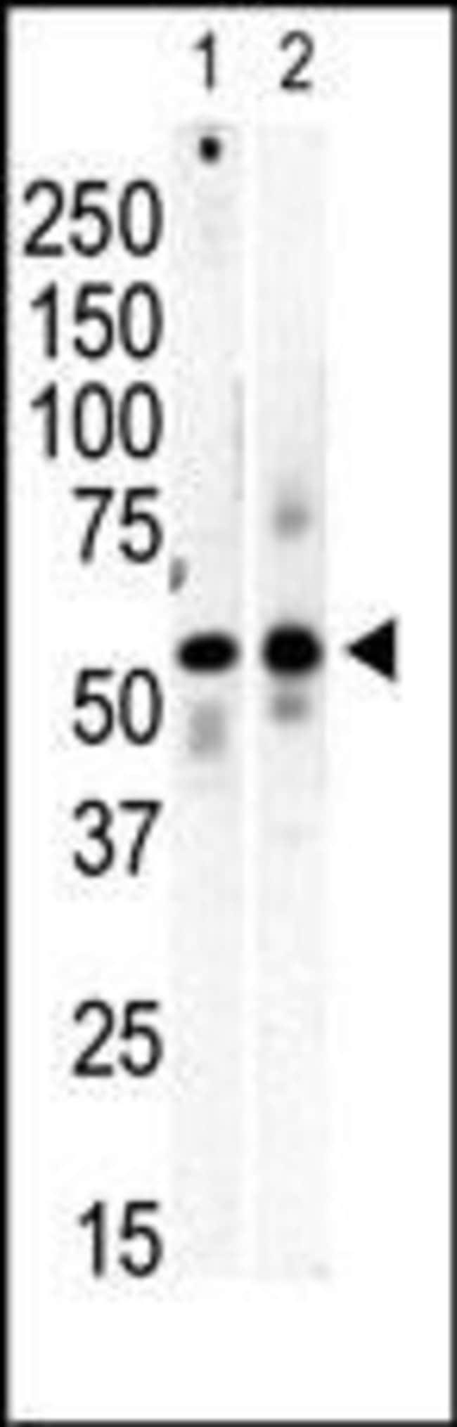PI4K2B Rabbit anti-Human, Mouse, Polyclonal, Invitrogen 100 µg; Unconjugated