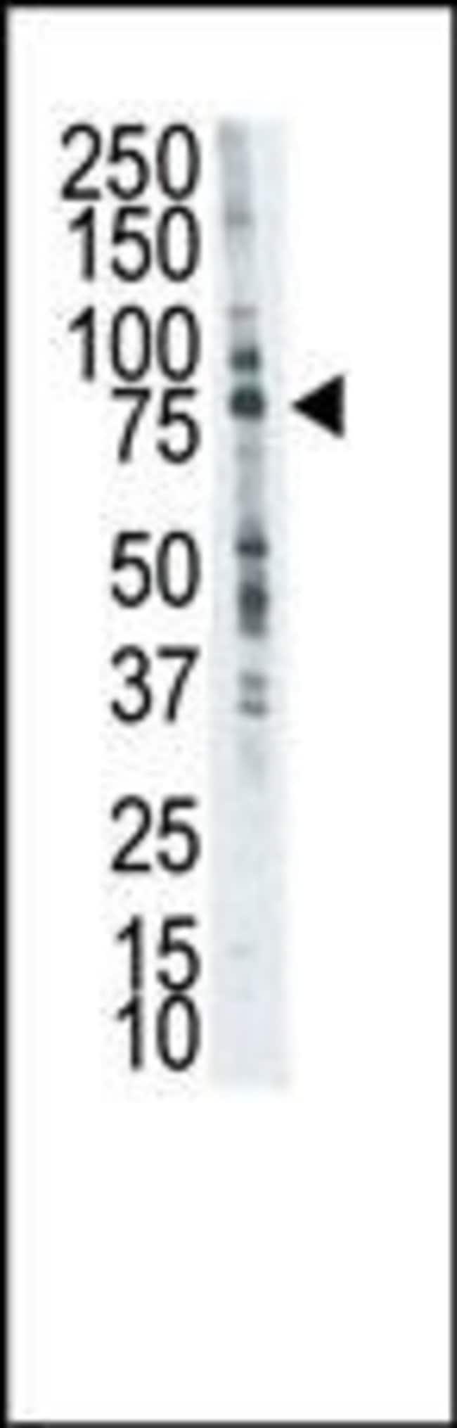 LTK Rabbit anti-Human, Polyclonal, Invitrogen 100 µg; Unconjugated