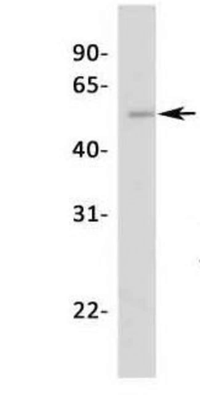 NR5A1 Rabbit anti-Human, Polyclonal, Invitrogen 50 µg; Unconjugated