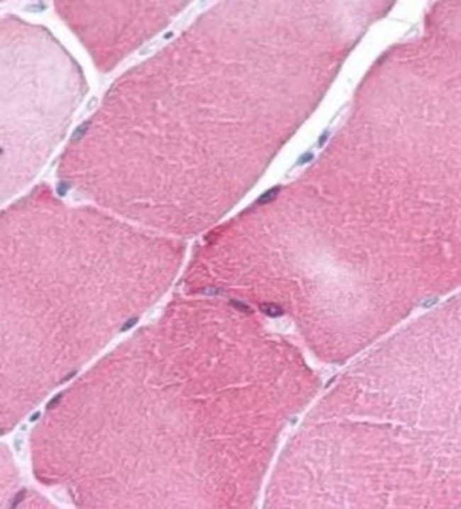 ARC Rabbit anti-Human, Polyclonal, Invitrogen 100 µg; Unconjugated