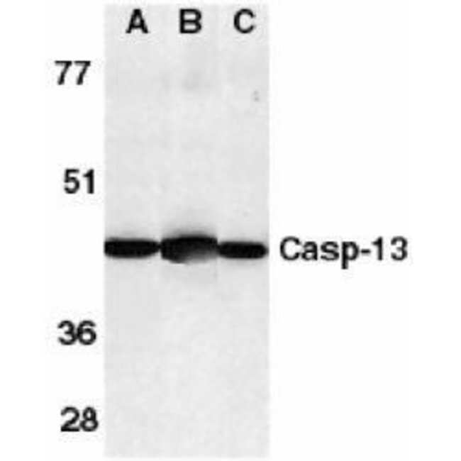 Caspase 13 Rabbit anti-Human, Mouse, Rat, Polyclonal, Invitrogen 100 µg;