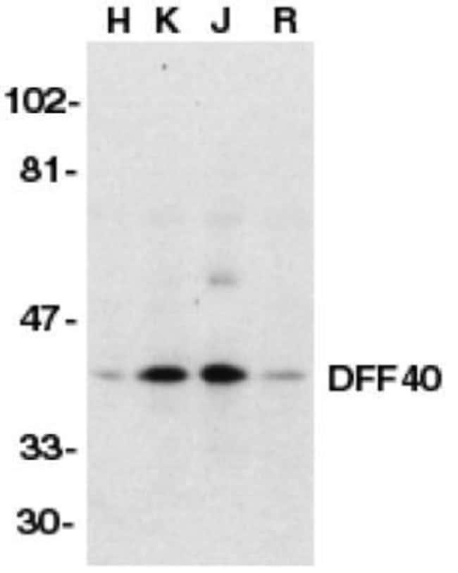 DFFB Rabbit anti-Human, Mouse, Rat, Polyclonal, Invitrogen 100 µg;