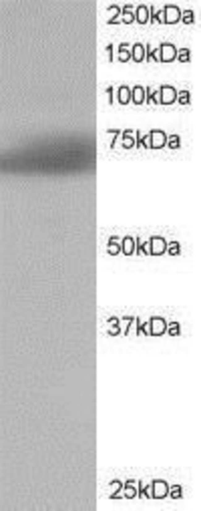 SH3BP1 Goat anti-Human, Polyclonal, Invitrogen 100 µg; Unconjugated