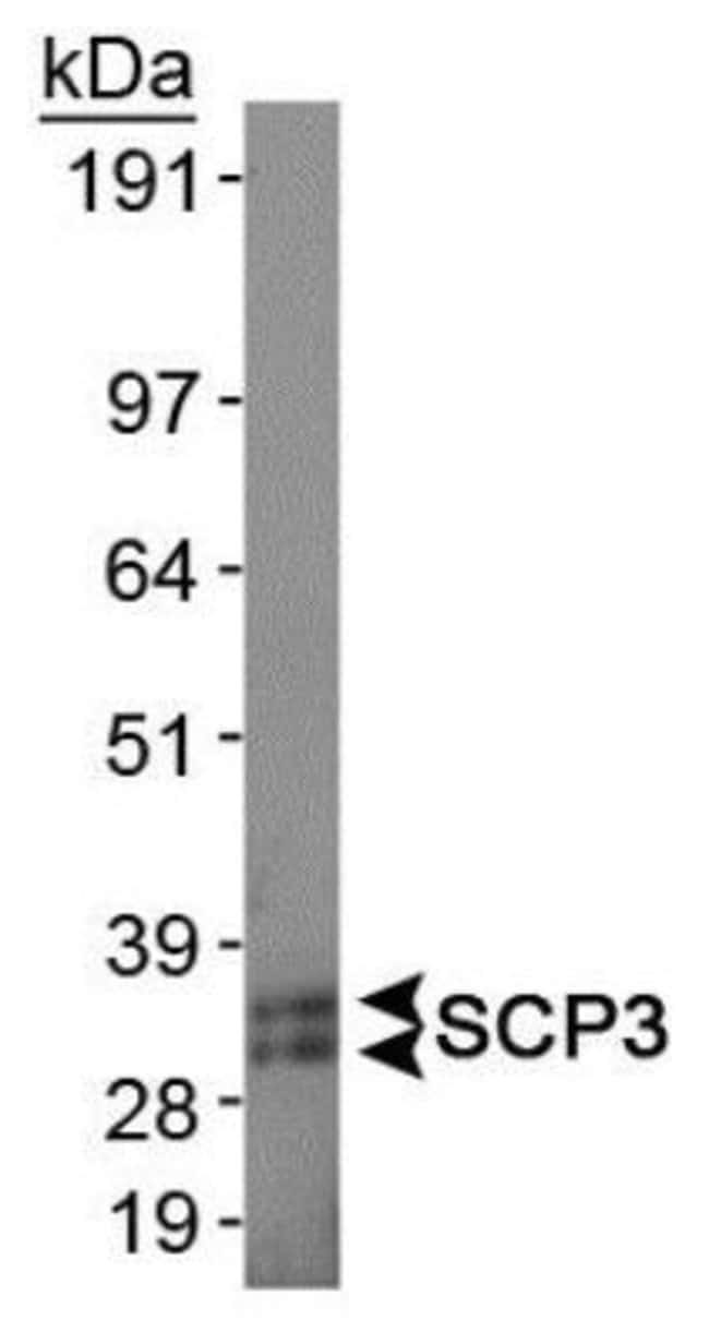 SCP3 Rabbit anti-Human, Mouse, Polyclonal, Invitrogen 100 µL; Unconjugated