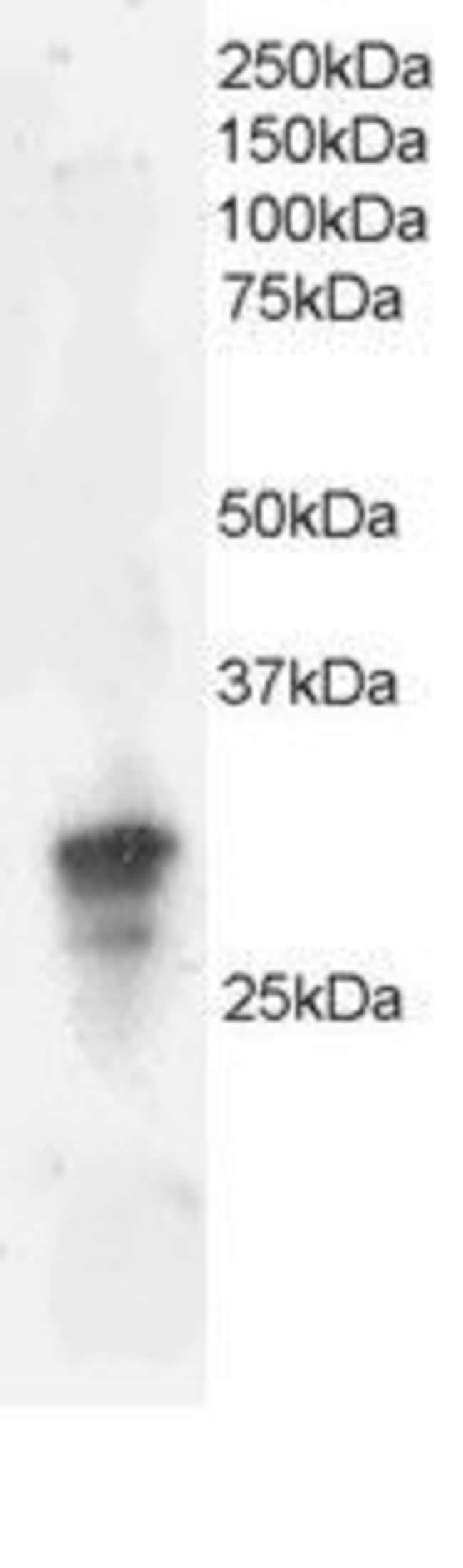 Dysadherin Goat anti-Human, Polyclonal, Invitrogen 50 µg; Unconjugated