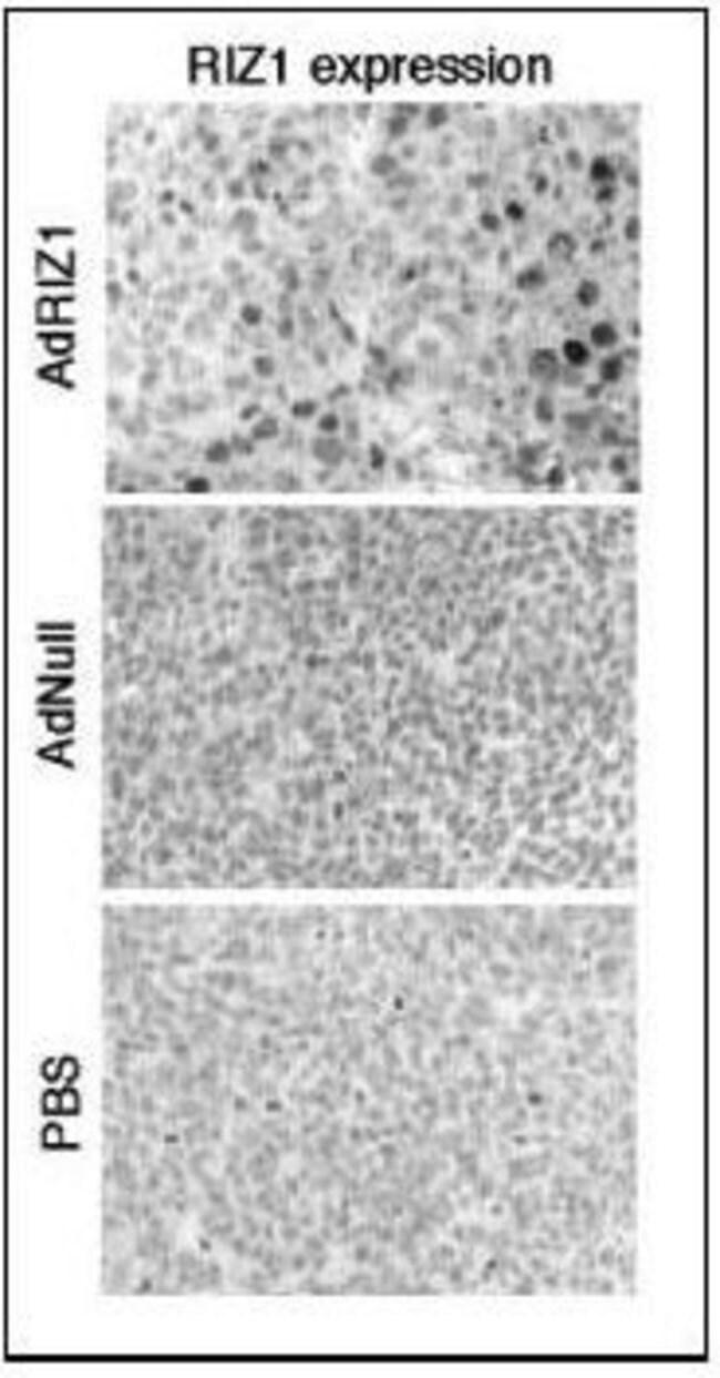 PRDM2 Rabbit anti-Human, Mouse, Rat, Polyclonal, Invitrogen 400 µL;