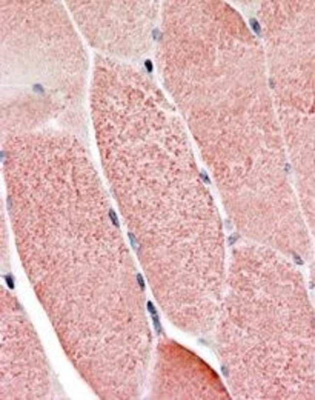 RNF90 Goat anti-Human, Polyclonal, Invitrogen 100 µg; Unconjugated