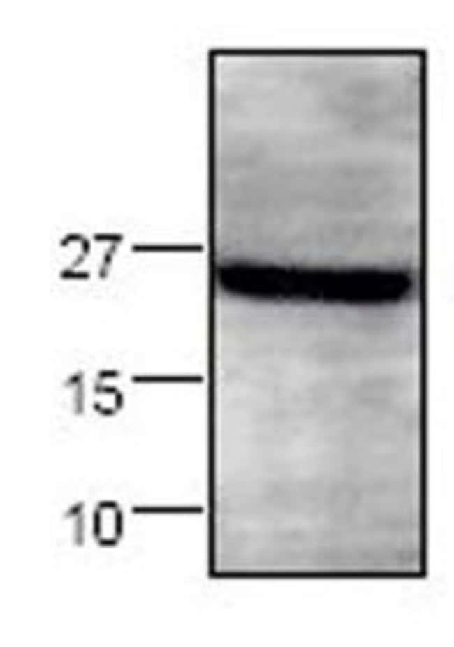 Syndecan 4 Rabbit anti-Human, Mouse, Rat, Polyclonal, Invitrogen 100 µg;