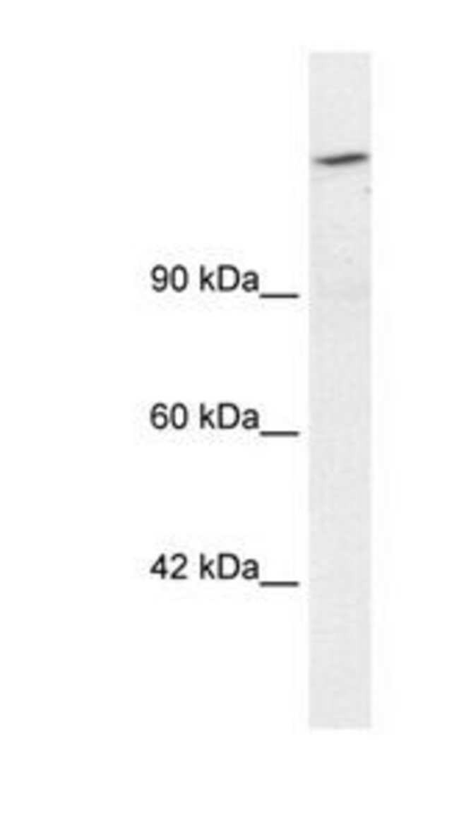 ARID4A Rabbit anti-Human, Polyclonal, Invitrogen 100 µg; Unconjugated