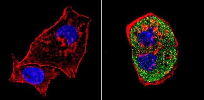 SREBP1 Rabbit anti-Human, Mouse, Rat, Polyclonal, Invitrogen 100 µg;