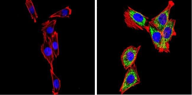 SREBP2 Rabbit anti-Human, Mouse, Rat, Polyclonal, Invitrogen 100 µg;