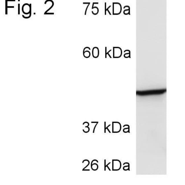 CYP3A4 Rabbit anti-Human, Rat, Polyclonal, Invitrogen 100 µL; Unconjugated