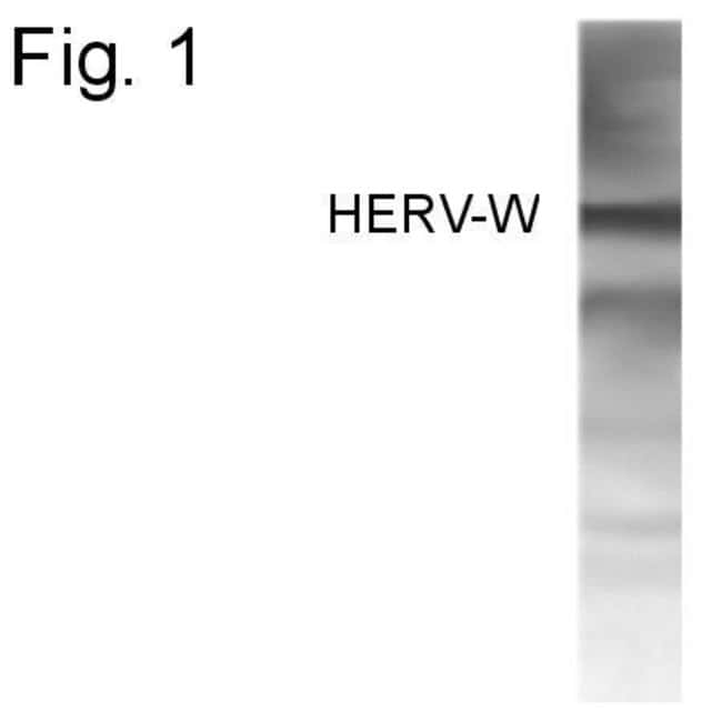 Endogenous Retrovirus Rabbit anti-Virus, Polyclonal, Invitrogen 100 µg;